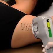 miraDry procedure